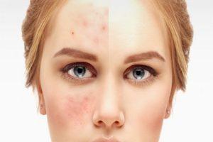 درمان بیماری پوستی و جوش صورت